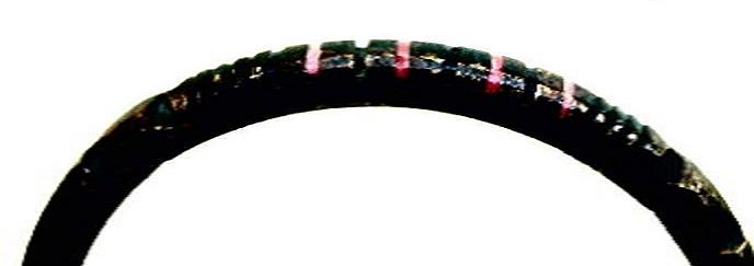 detail armband